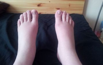 sufres-de-pies-hinchados-ten-presente-estos-consejos-01