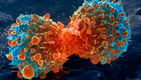lung-cancer-cell-dividing-article.__v200248237